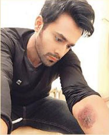 Pearl V Puri suffers burn injuries! | India Forums